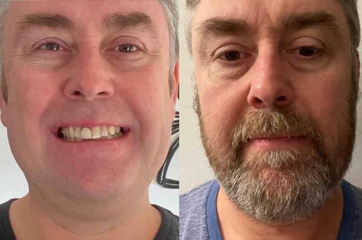 Head of Savings, Richard Miles, raises funds for Movember
